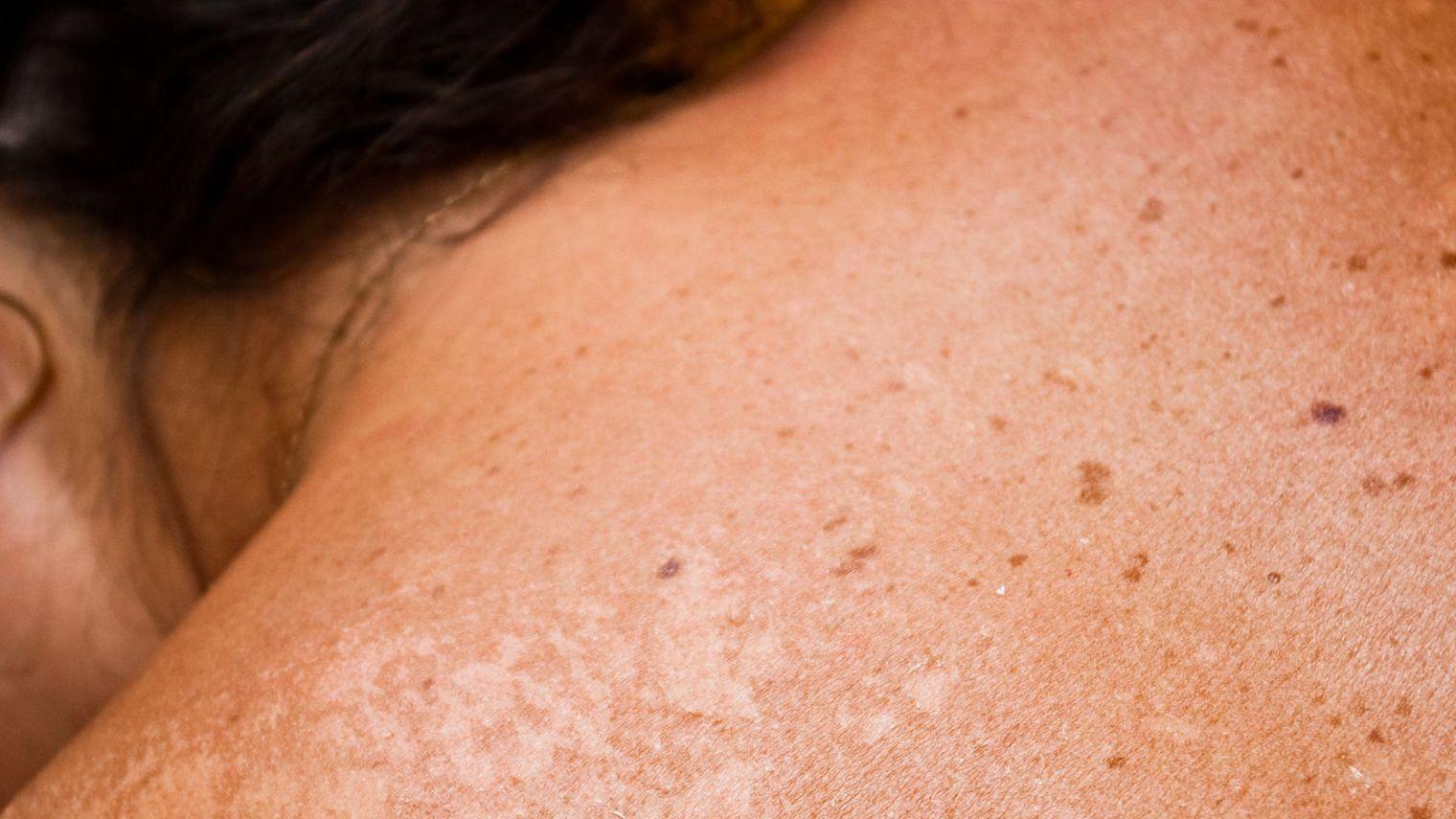 Eclaircir les taches brunes beautytricks - Tache de resine sur vetement ...